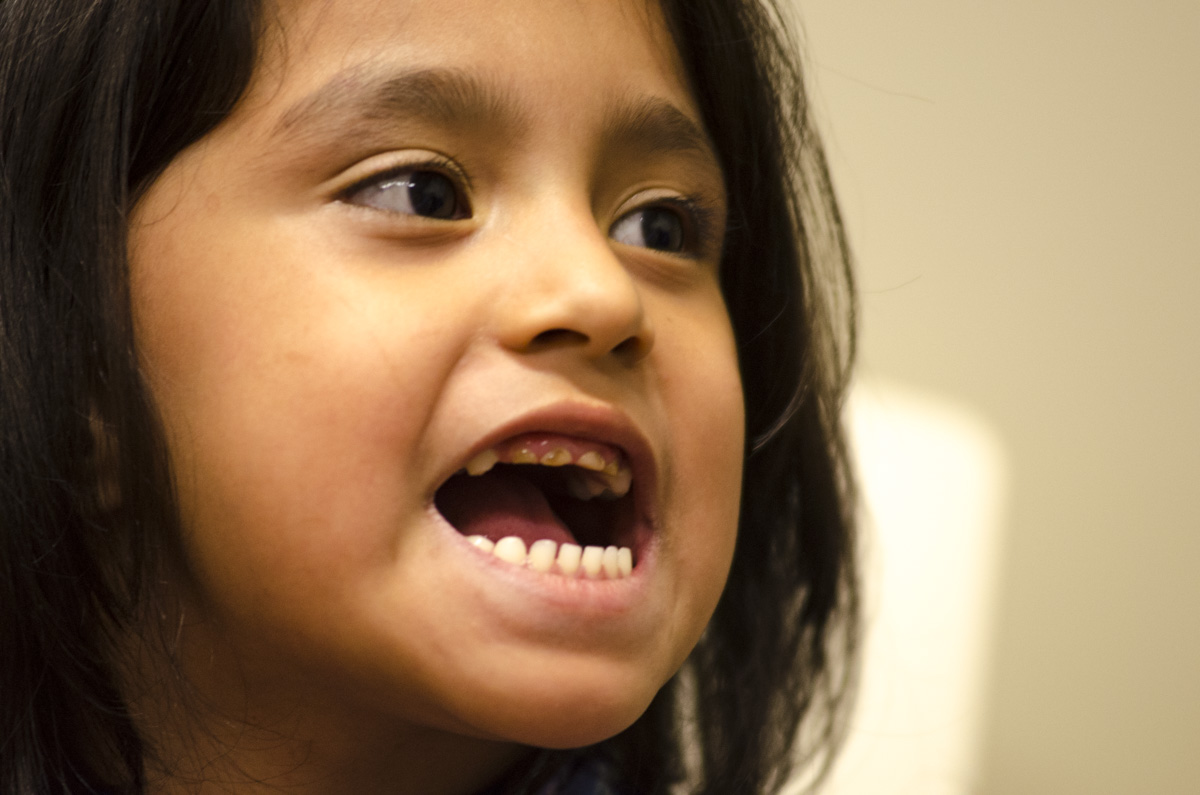 <p>Analiya Aguilar, 5, shows her teeth shortly before dental surgery at Children's Hospital Colorado in Aurora, on Thursday, March 5, 2015.</p>