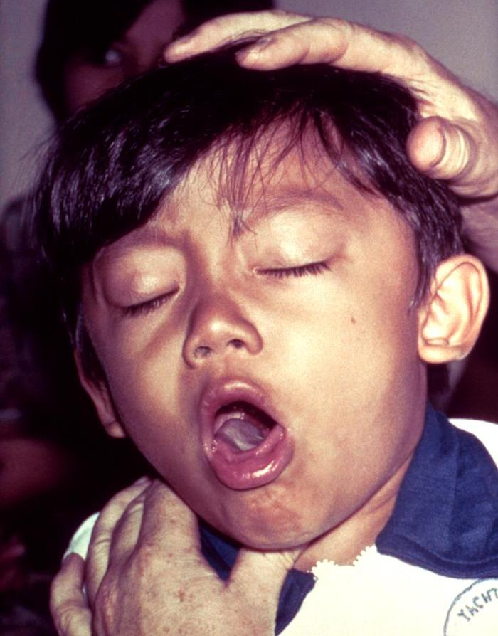 Photo: Boy with pertussis