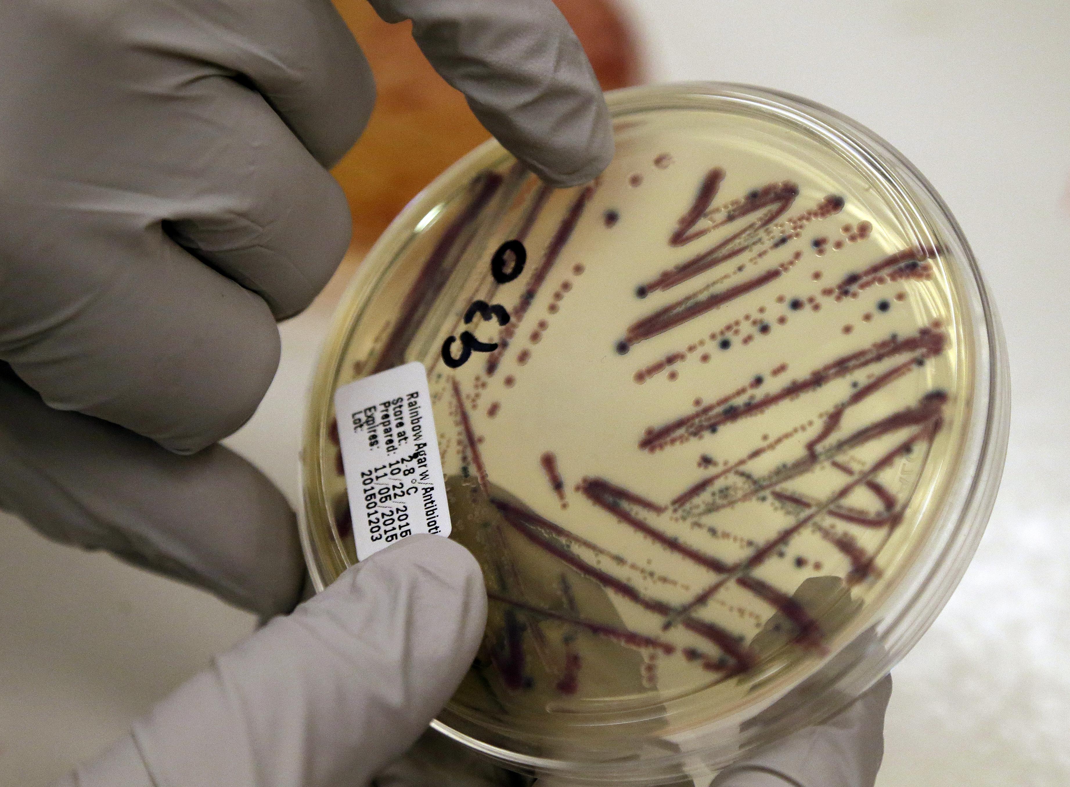 Photo: Chipotle E. coli Petrie Dish
