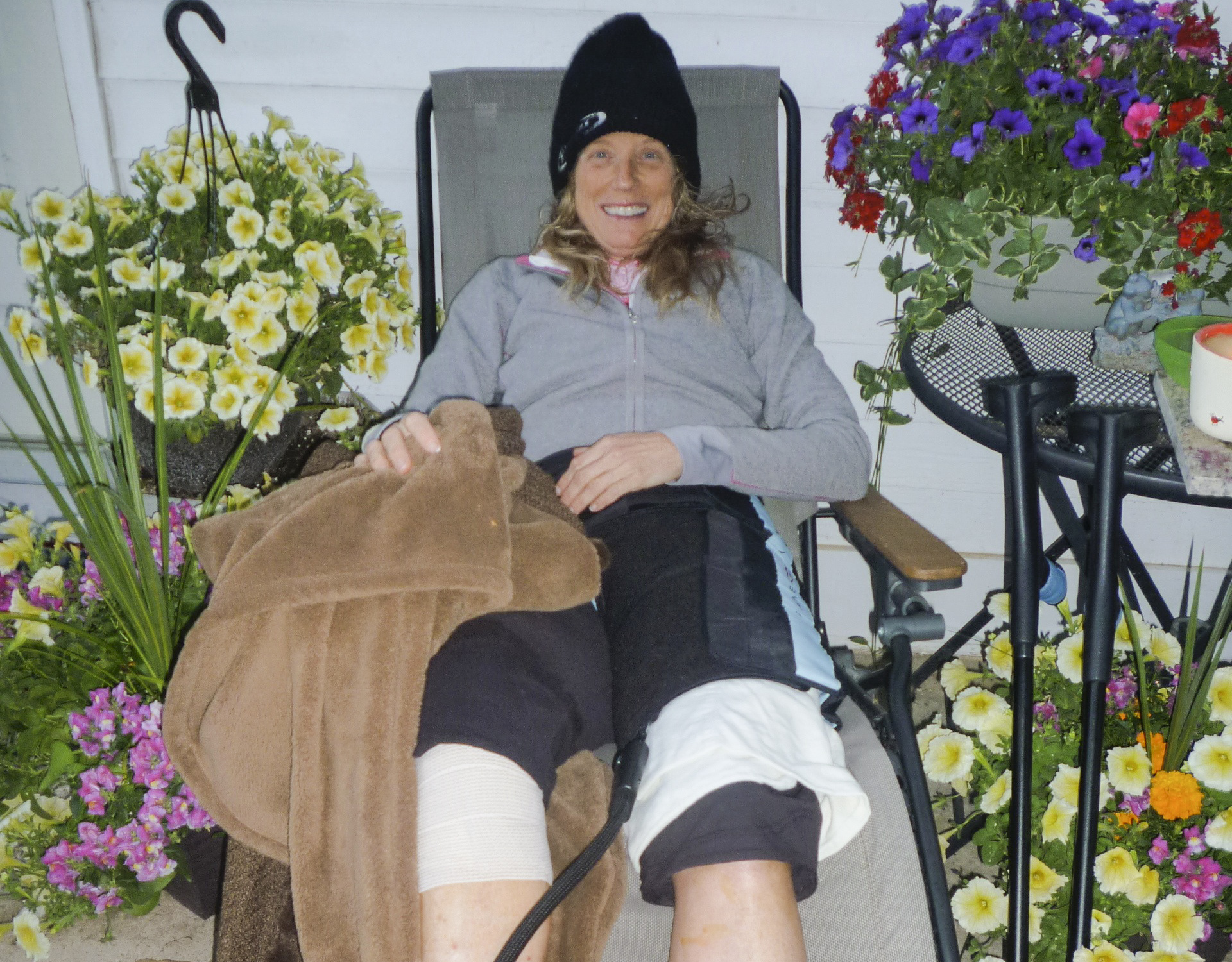 Photo: Extreme sports injury 1 | Michelle Grainger after surgery